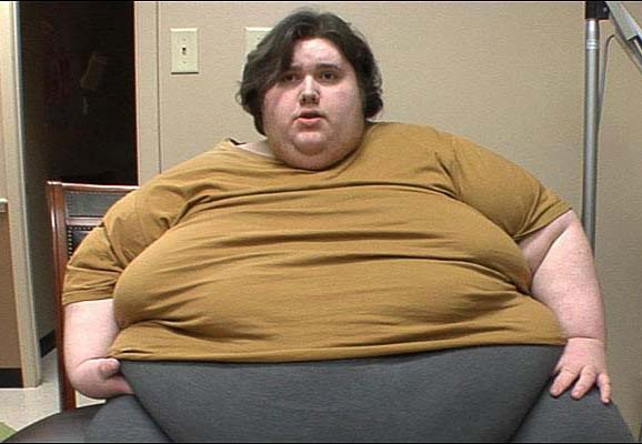 Những người béo phì có những nguy cơ mắc đái tháo đường