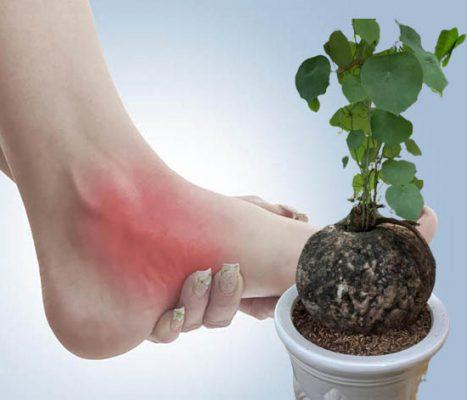 Củ bình vôi hỗ trợ điều trị bệnh gout hiệu quả